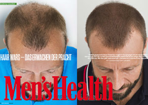 Men's Health 2016 Artikel Alamouti Haartransplantation